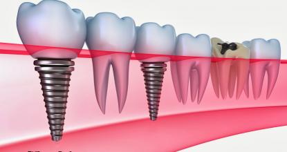 diş hekimi, implant fiyatları, sağlıklı diş yapıları