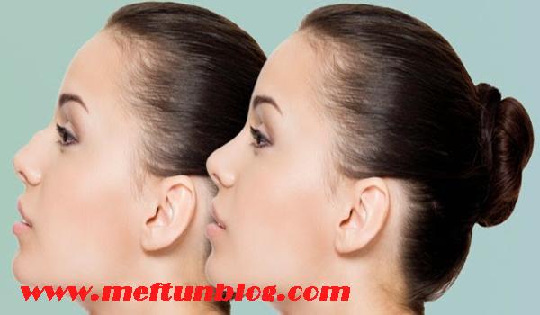 burun botoksu nedir, burun botoksu nasıl yapılır, burun botoksunun faydaları