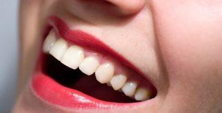 diş estetiği yaptırma, diş estetiği nasıl yapılır, diş estetiği hakkında bilmeniz gerekenler