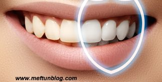 diş nasıl beyazlar, diş beyazlatma yöntemleri, diş beyazlatma uygulamaları