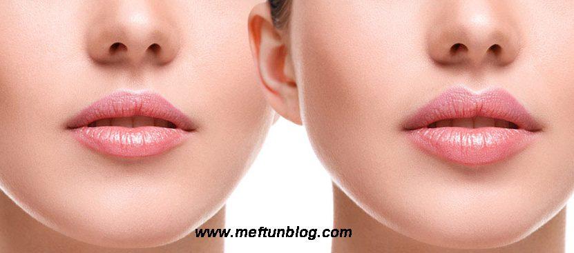 dudak dolgusu nasıl yapılır, dudak dolgusu öncesi, dudak dolgusu sonrası