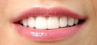 diş estetiği temizliği yapımı, diş estetiği yapımı