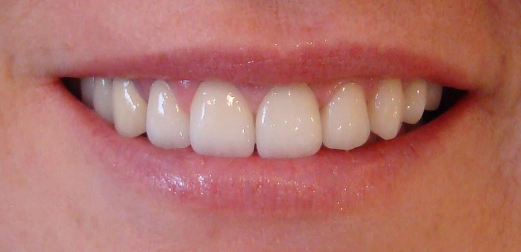 lamine diş bakımı, lamine diş diş temizliği, lamine dişi temizleme