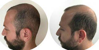 uzman saç ekim merkezi, saç ekimi yapan merkezler