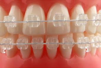 şeffaf diş teli, diş teli nasıl takılır, diş teli takma, şeffaf diş teli çeşitleri