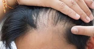 saç ektirme, saç ekiminde yanlış bilinenler
