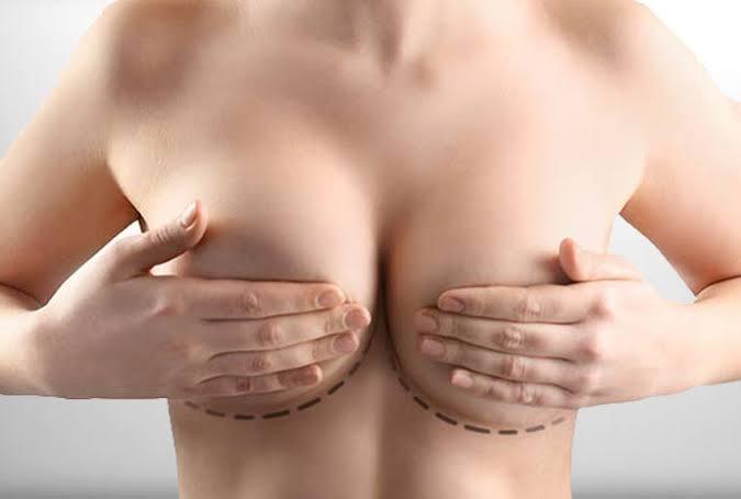göğüs estetiği operasyonu, göğüs estetiği yapımı, göğüs büyütme operasyonu
