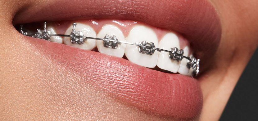 ortodonti tedavisi, ortodonti ücretleri, ortodonti tedavisi yapımı