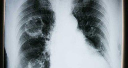 akciğer kanseri, akciğer kanseri nedenleri, akciğer kanseri tedavisi