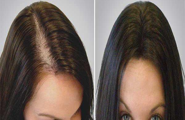 bayanlarda saç ektirme, kadın saç ekimi, saç ekimi yapımı