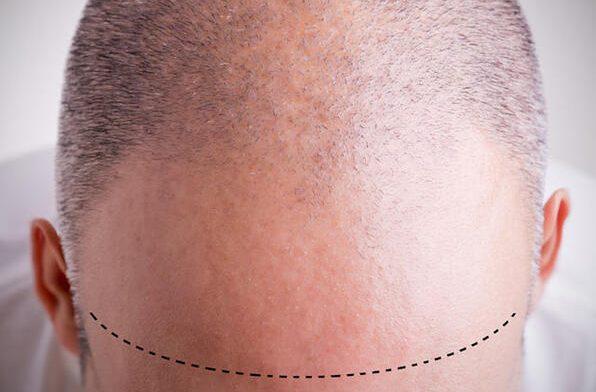 saç ekimi, saç ekiminde uygun bölge, hangi bölgelere saç ekilir