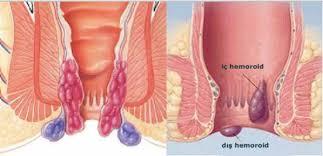 basur tedavisi, basur nasıl tedavi edilir, basur tedavi yöntemleri