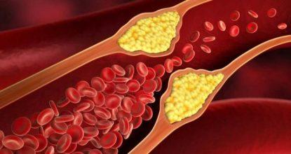 iyi kolesterol, iyi kolesterol ne demek, iyi kolesterol nasıl anlaşılır