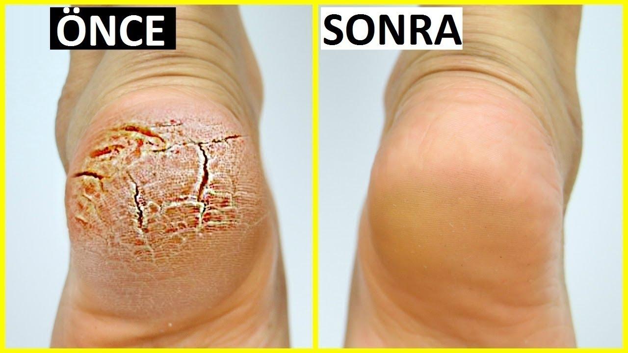 topuk çatlakları, topuk çatlağı tedavisi, topuk çatlağı sebepleri