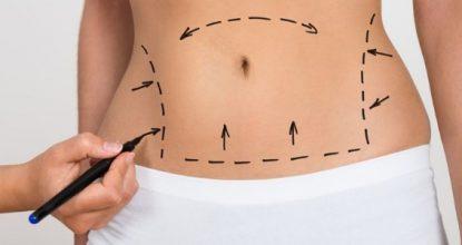 liposuction yapımı, liposuction nasıl yapılır, liposuction merkezleri