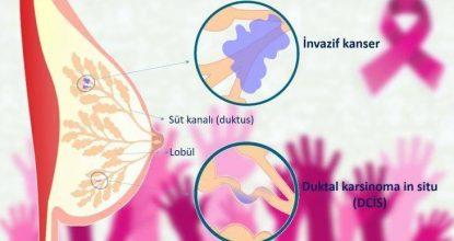 invaziv lobüler karsinom nedir, invaziv lobüler karsinom ne demek, invaziv lobüler karsinom belirtileri, invaziv lobüler karsinom tedavisi