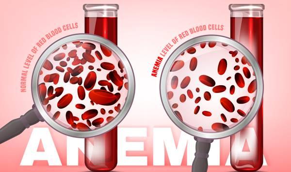 anemi türleri, anemi ne demek, anemi tedavisi