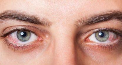 göz kuruluğu nedenleri, göz kuruluğuna neler iyi gelir, göz kuruluğu nedenleri
