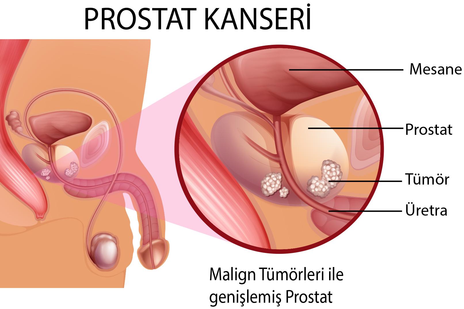 prostat kanseri, prostat kanseri tedavisi, prostat kanseri tanısı